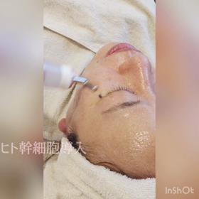 肌細胞から老化ケア☆リブセラフェイシャルの画像
